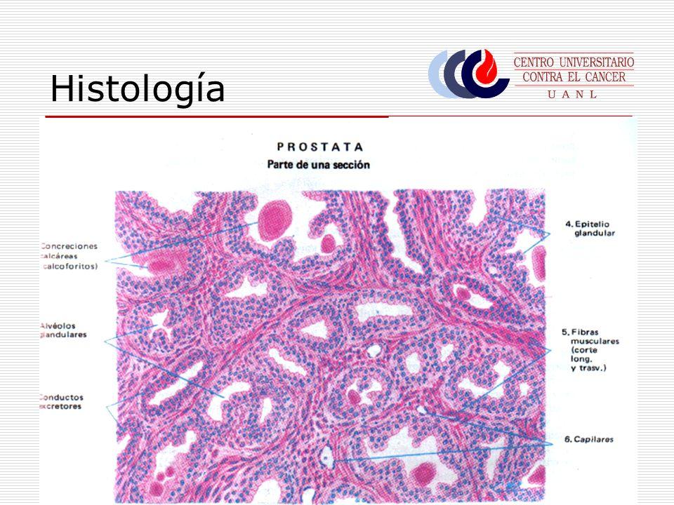 Histología Mayoría: Adenocarcinomas 95% Otras: Carcinomas intralobulares Carcinomas Ductales Tumores de células pequeñas (caract.