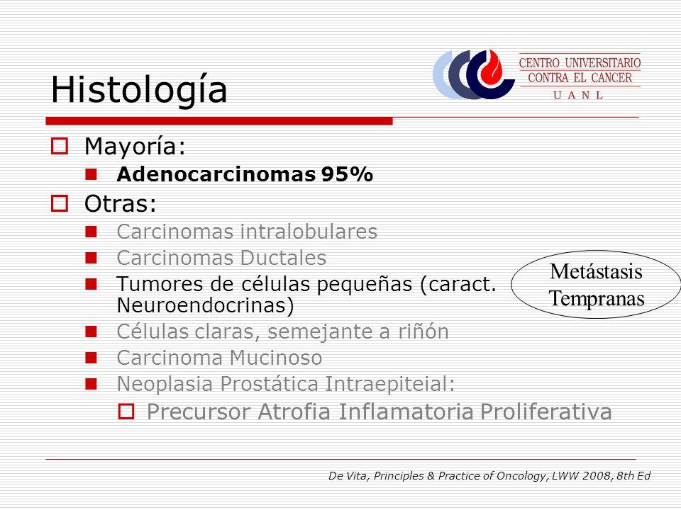 Histología Mayoría: Adenocarcinomas 95% Otras: Carcinomas intralobulares Carcinomas Ductales Tumores de células pequeñas (caract. Neuroendocrinas) Cél