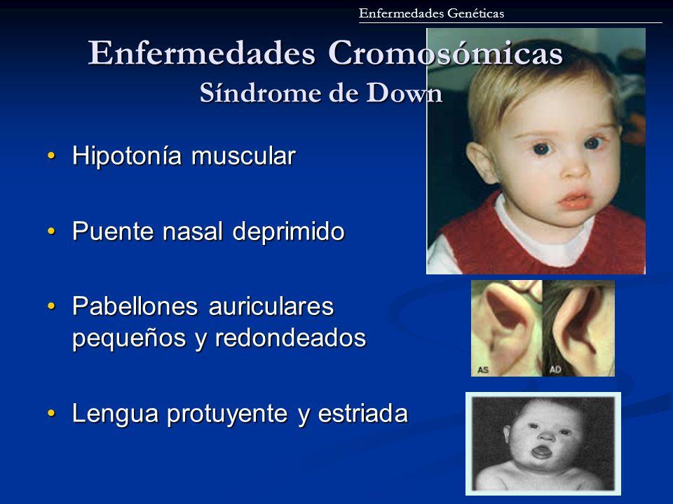 Enfermedades Cromosómicas Síndrome de Down Enfermedades Cromosómicas Síndrome de Down Hipotonía muscularHipotonía muscular Puente nasal deprimidoPuent