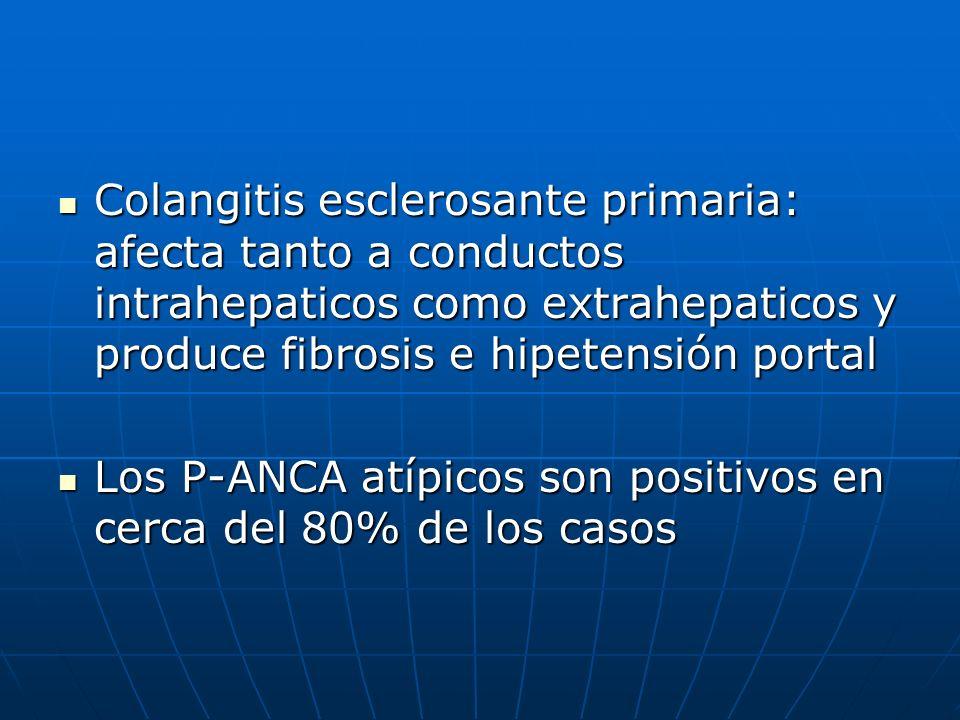 Colangitis esclerosante primaria: afecta tanto a conductos intrahepaticos como extrahepaticos y produce fibrosis e hipetensión portal Colangitis escle