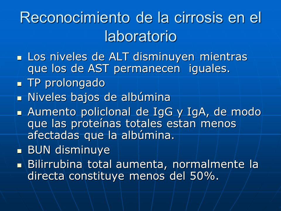 Reconocimiento de la cirrosis en el laboratorio Los niveles de ALT disminuyen mientras que los de AST permanecen iguales. Los niveles de ALT disminuye