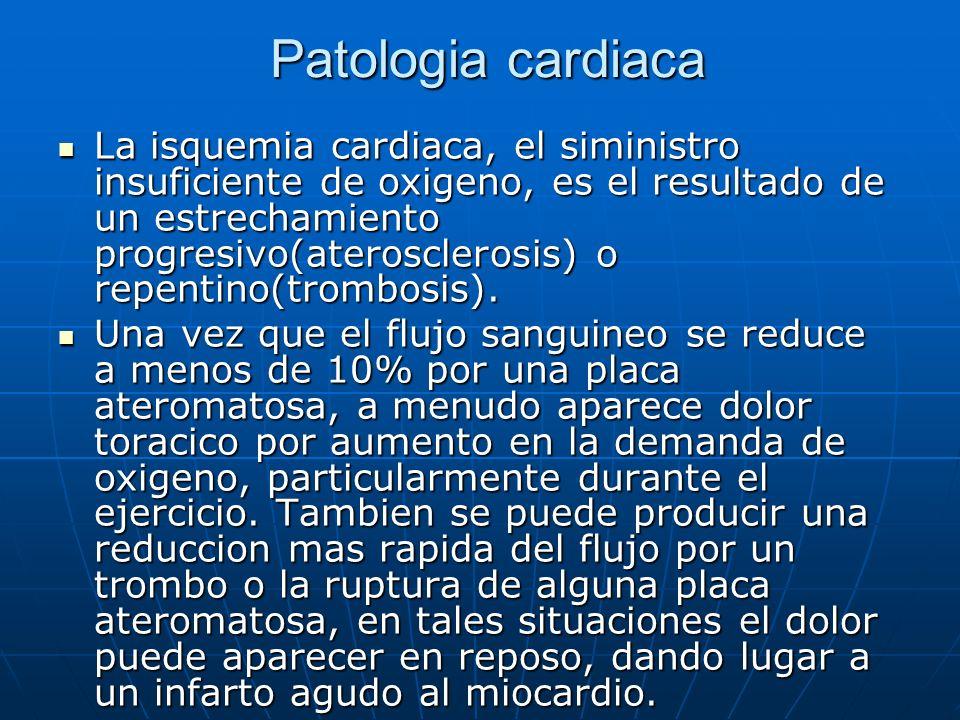 Patologia cardiaca Patologia cardiaca La isquemia cardiaca, el siministro insuficiente de oxigeno, es el resultado de un estrechamiento progresivo(ate