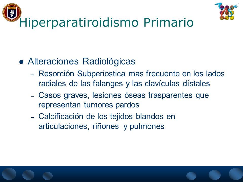 Hiperparatiroidismo Primario Alteraciones Radiológicas – Resorción Subperiostica mas frecuente en los lados radiales de las falanges y las clavículas