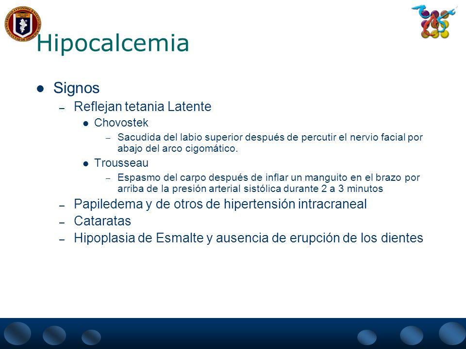 Hipocalcemia Signos – Reflejan tetania Latente Chovostek – Sacudida del labio superior después de percutir el nervio facial por abajo del arco cigomát