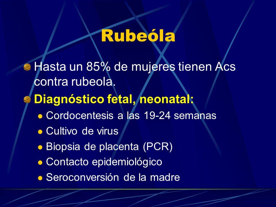 Rubeóla Hasta un 85% de mujeres tienen Acs contra rubeola. Diagnóstico fetal, neonatal: Cordocentesis a las 19-24 semanas Cultivo de virus Biopsia de