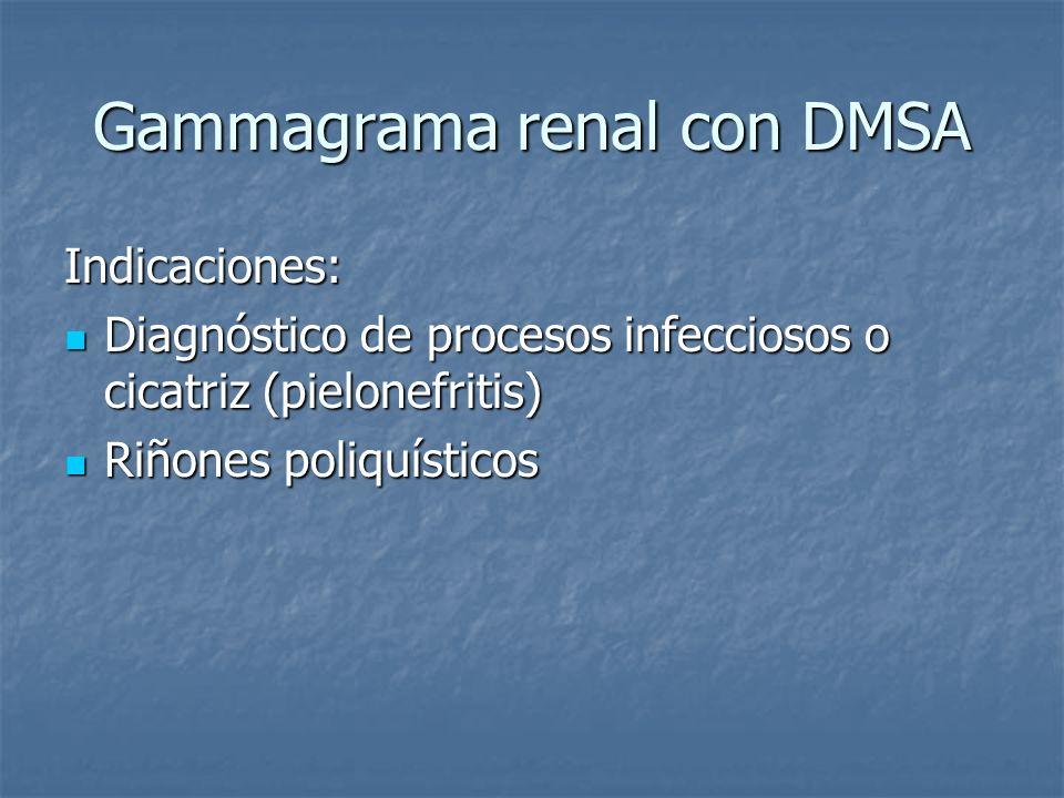 Gammagrama renal con DMSA Indicaciones: Diagnóstico de procesos infecciosos o cicatriz (pielonefritis) Diagnóstico de procesos infecciosos o cicatriz