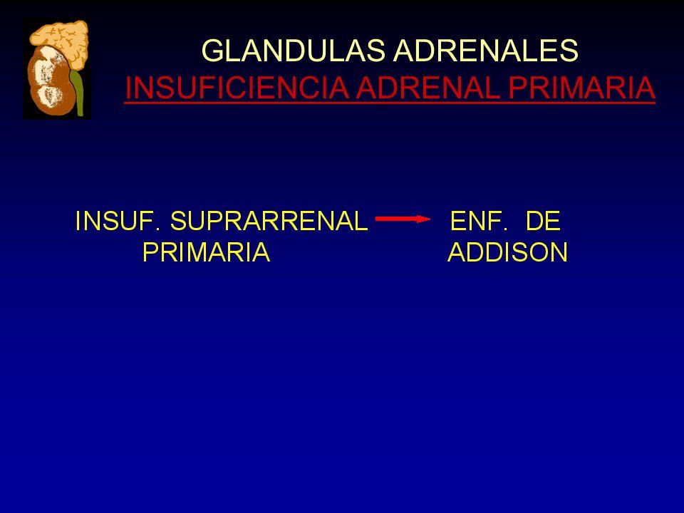 GLANDULAS ADRENALES INSUFICIENCIA ADRENAL PRIMARIA