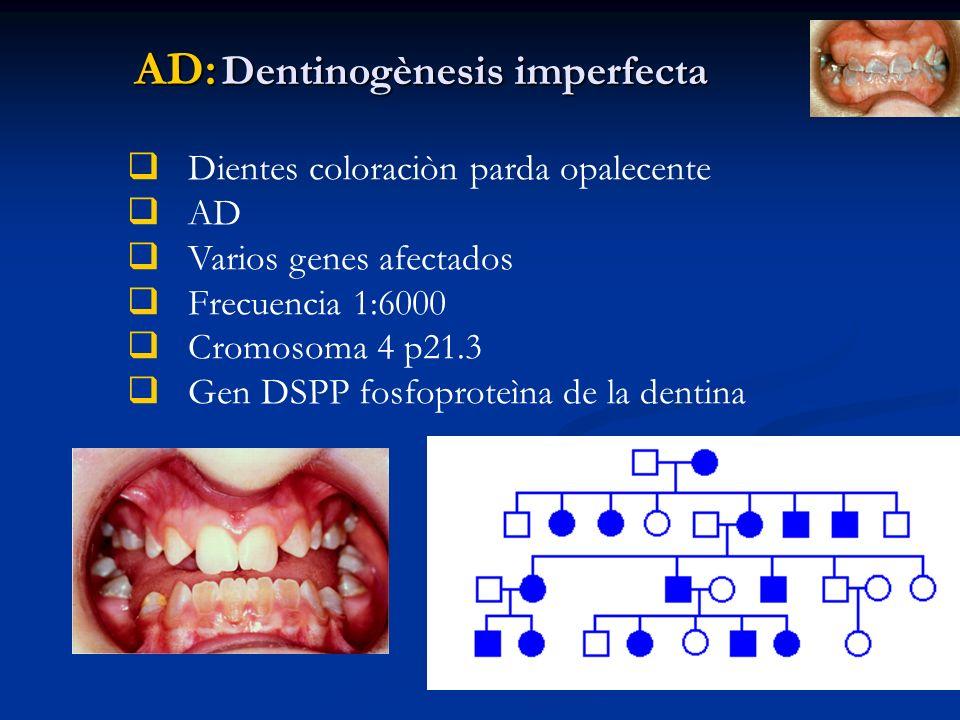 AD: Dentinogènesis imperfecta Dientes coloraciòn parda opalecente AD Varios genes afectados Frecuencia 1:6000 Cromosoma 4 p21.3 Gen DSPP fosfoproteìna