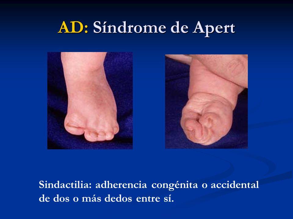 Sindactilia: adherencia congénita o accidental de dos o más dedos entre sí.