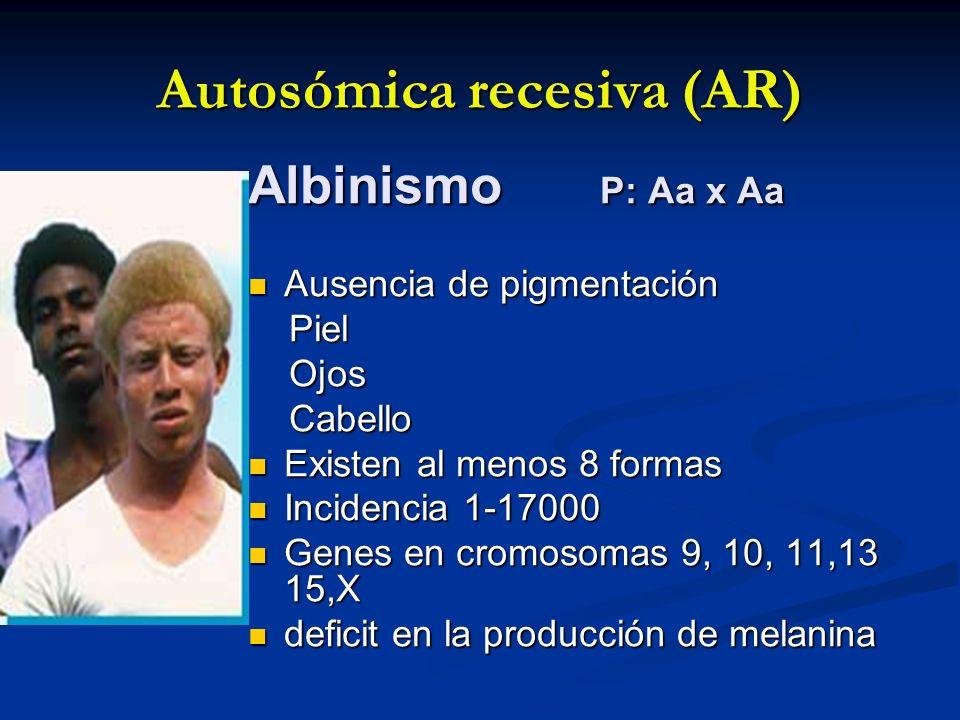 Autosómica recesiva (AR) Albinismo P: Aa x Aa Ausencia de pigmentación Ausencia de pigmentación Piel Piel Ojos Ojos Cabello Cabello Existen al menos 8