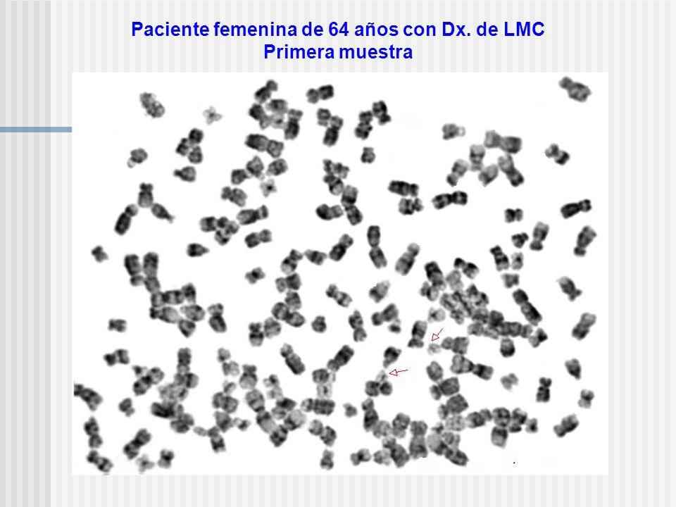 Paciente femenina de 64 años con Dx. de LMC Primera muestra