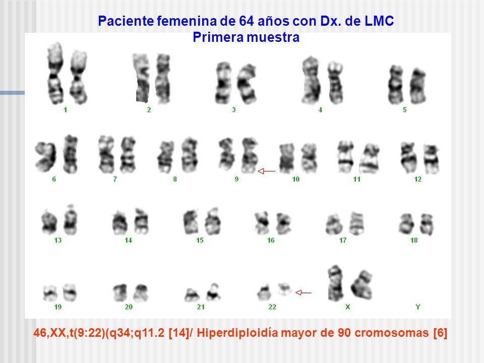 Paciente femenina de 64 años con Dx. de LMC Primera muestra 46,XX,t(9:22)(q34;q11.2 [14]/ Hiperdiploidía mayor de 90 cromosomas [6]