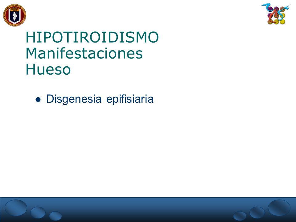 HIPOTIROIDISMO Manifestaciones Hueso Disgenesia epifisiaria