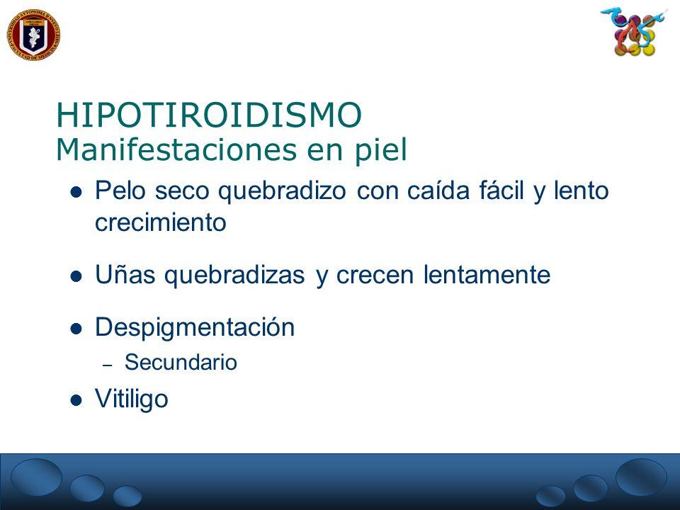 HIPOTIROIDISMO Manifestaciones en piel Pelo seco quebradizo con caída fácil y lento crecimiento Uñas quebradizas y crecen lentamente Despigmentación – Secundario Vitiligo