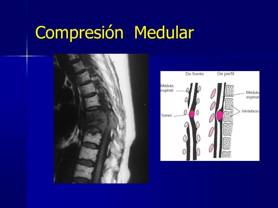 Compresión Medular