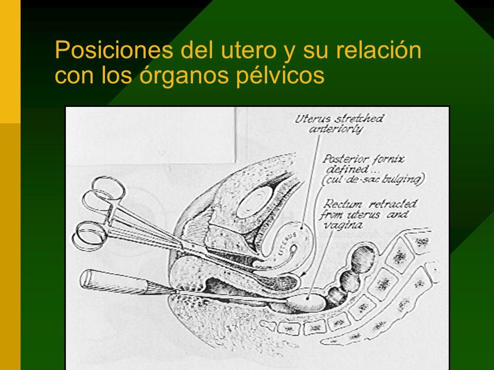 Posiciones del utero y su relación con los órganos pélvicos