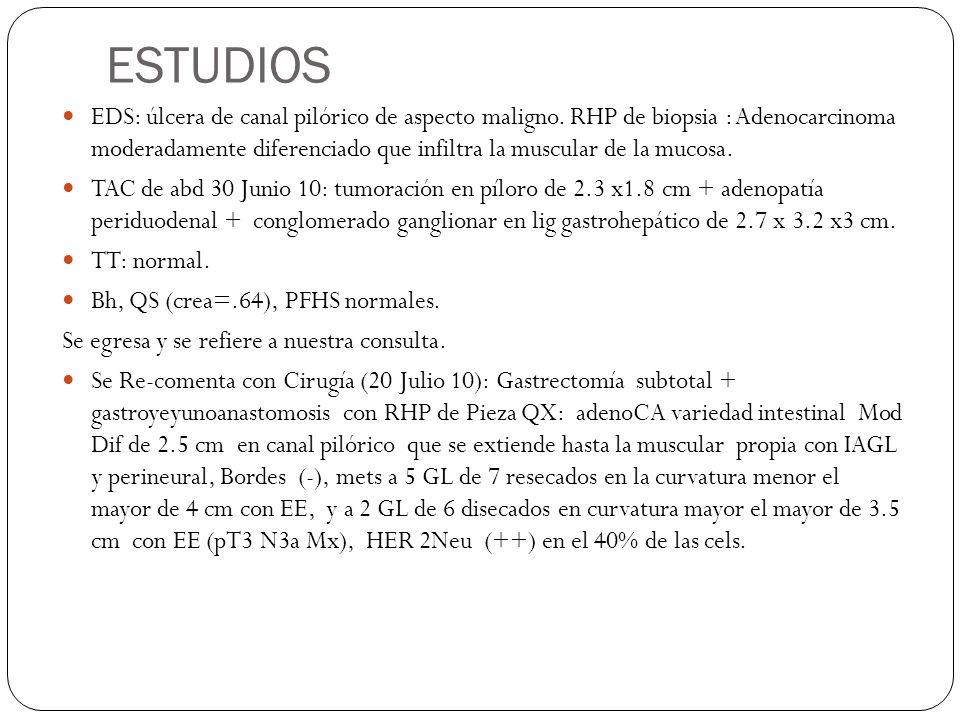 ESTUDIOS EDS: úlcera de canal pilórico de aspecto maligno. RHP de biopsia : Adenocarcinoma moderadamente diferenciado que infiltra la muscular de la m
