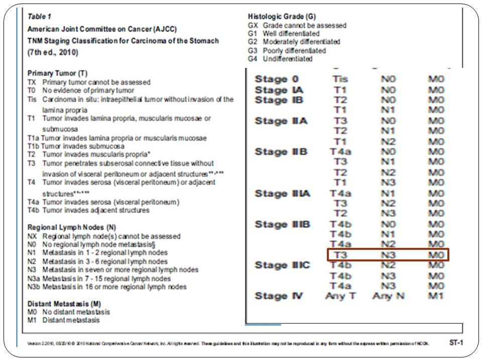 Ca gástrico pT3 pN3a MO etapa patológica IIIB Plan: Tratamiento con QTRT.