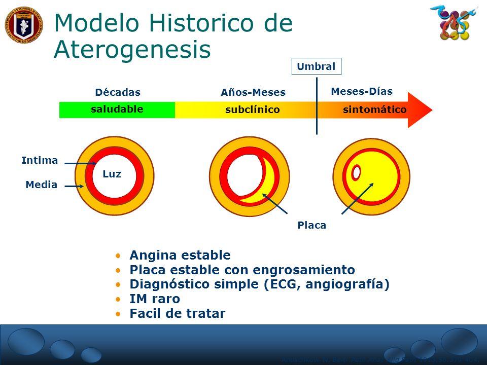 Modelo Historico de Aterogenesis saludable subclínicosintomático Umbral DécadasAños-Meses Meses-Días Placa Intima Media Luz Angina estable Placa estab