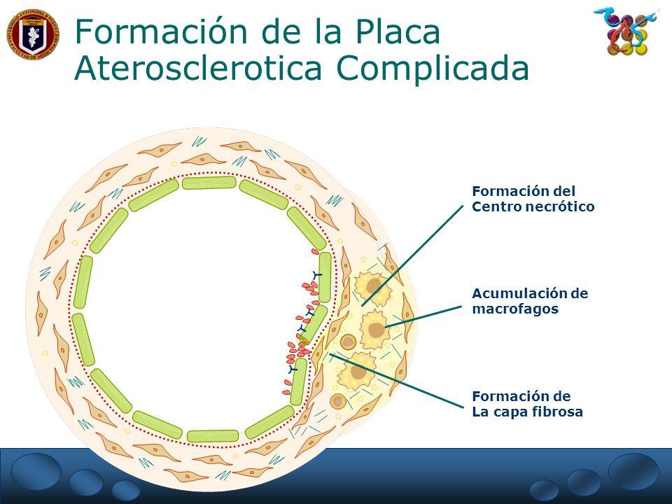 Formación de La capa fibrosa Acumulación de macrofagos Formación del Centro necrótico Formación de la Placa Aterosclerotica Complicada