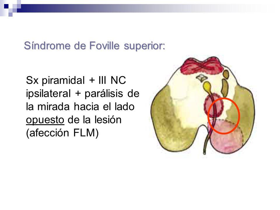 Sx piramidal + III NC ipsilateral + parálisis de la mirada hacia el lado opuesto de la lesión (afección FLM) Síndrome de Foville superior: