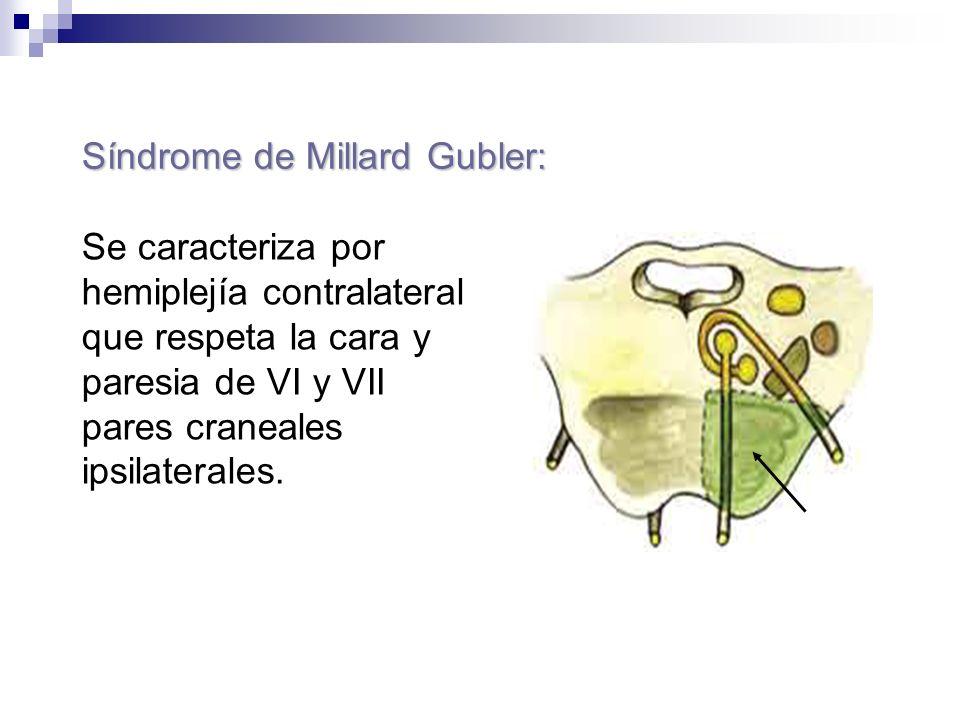 Síndrome de Millard Gubler: Se caracteriza por hemiplejía contralateral que respeta la cara y paresia de VI y VII pares craneales ipsilaterales.