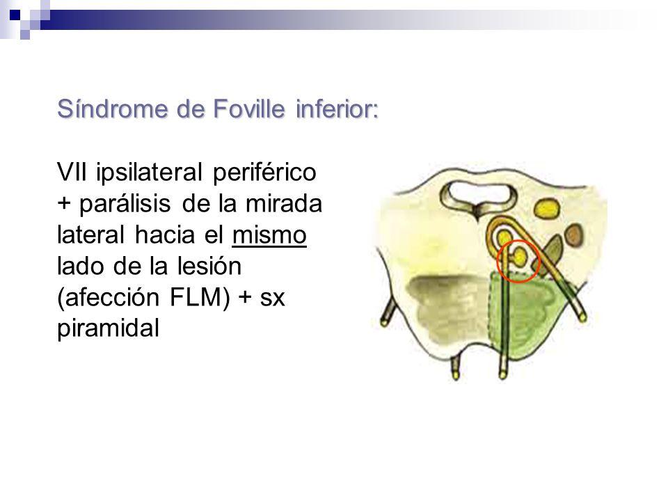 Síndrome de Foville inferior: VII ipsilateral periférico + parálisis de la mirada lateral hacia el mismo lado de la lesión (afección FLM) + sx piramid