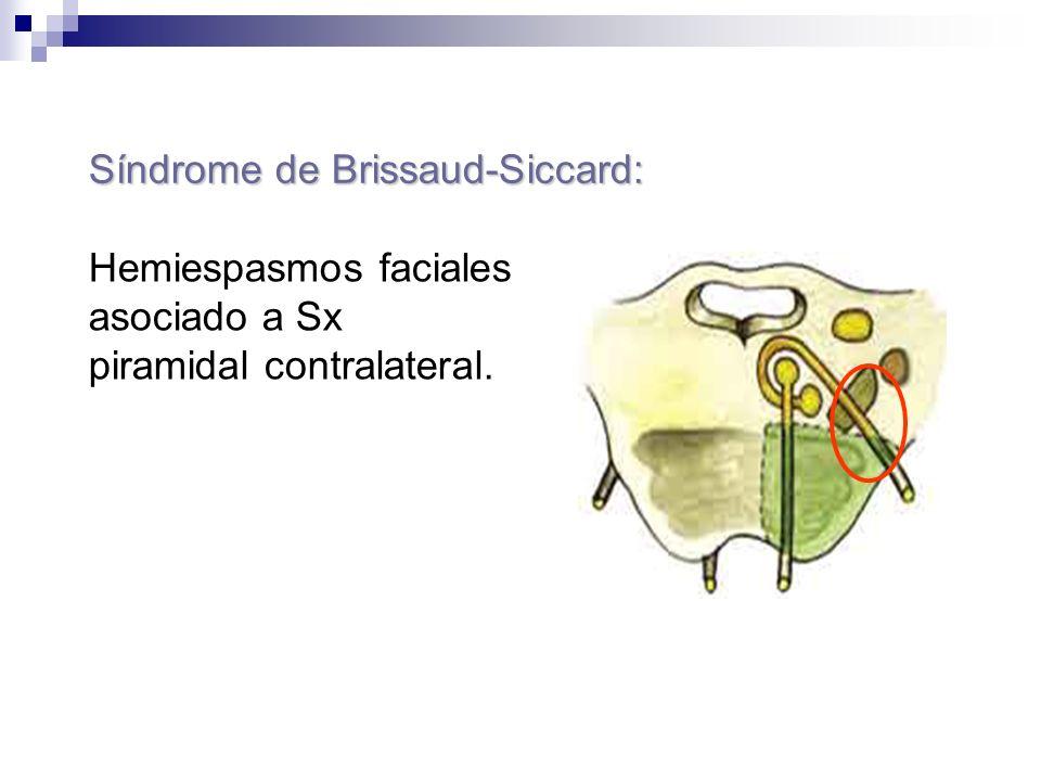 Síndrome de Brissaud-Siccard: Hemiespasmos faciales asociado a Sx piramidal contralateral.