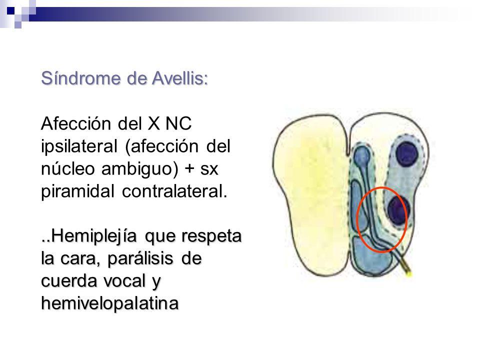 Síndrome de Avellis: Afección del X NC ipsilateral (afección del núcleo ambiguo) + sx piramidal contralateral...Hemiplejía que respeta la cara, paráli