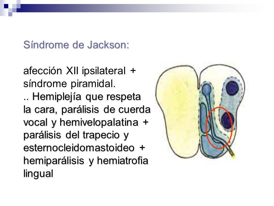Síndrome de Jackson: afección XII ipsilateral + síndrome piramidal. Hemiplejía que respeta la cara, parálisis de cuerda vocal y hemivelopalatina + par