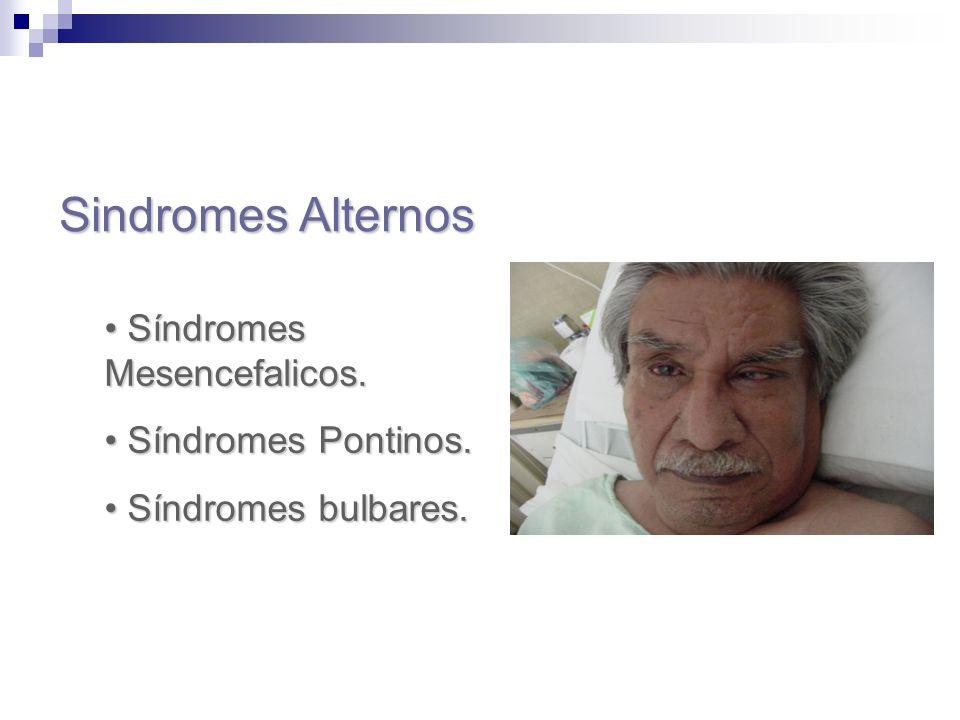 Sindromes Alternos Síndromes Mesencefalicos. Síndromes Mesencefalicos. Síndromes Pontinos. Síndromes Pontinos. Síndromes bulbares. Síndromes bulbares.