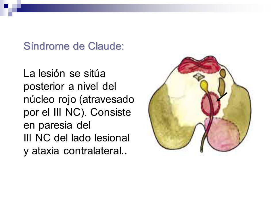 Síndrome de Claude: La lesión se sitúa posterior a nivel del núcleo rojo (atravesado por el III NC). Consiste en paresia del III NC del lado lesional