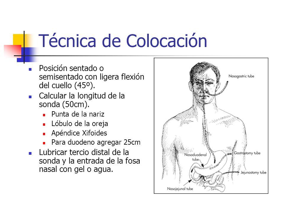 Técnica de Colocación Pedir al paciente que degluta al llegar la sonda a retrofaringe.