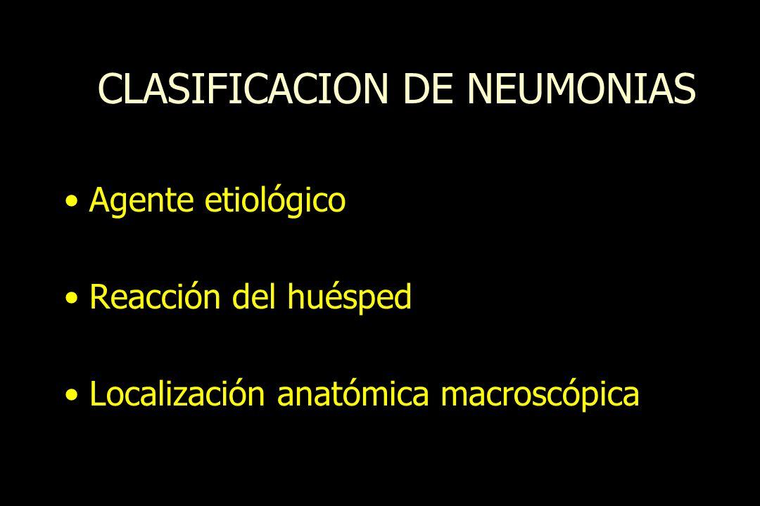 CLASIFICACION DE NEUMONIAS Agente etiológico Reacción del huésped Localización anatómica macroscópica