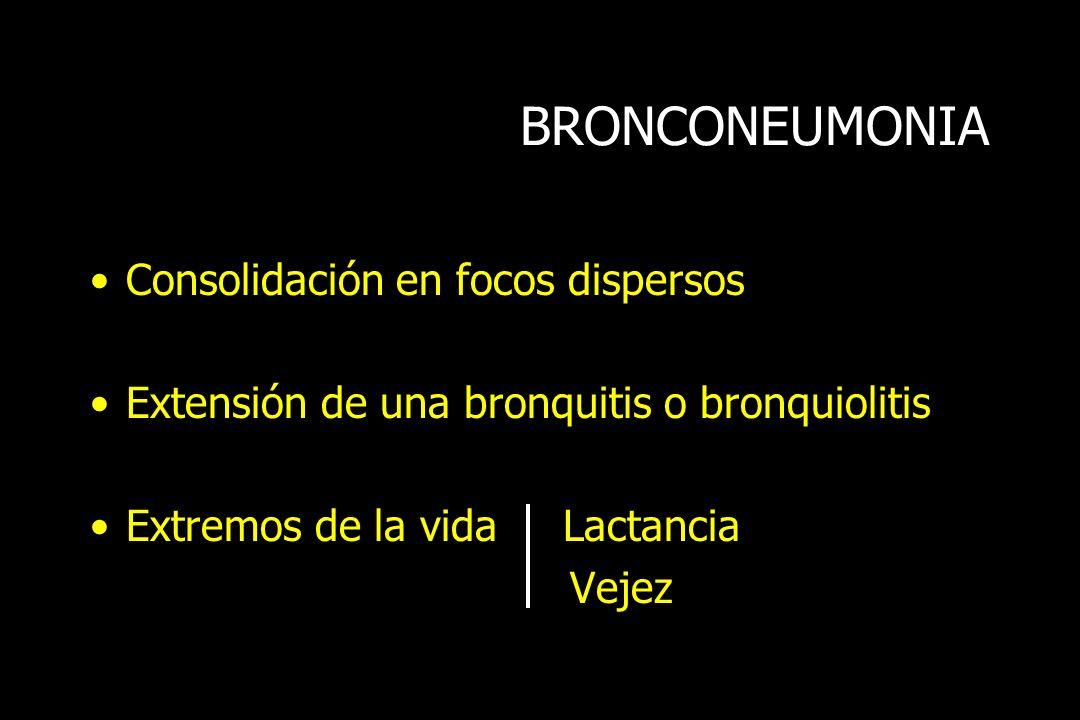 BRONCONEUMONIA Consolidación en focos dispersos Extensión de una bronquitis o bronquiolitis Extremos de la vida Lactancia Vejez