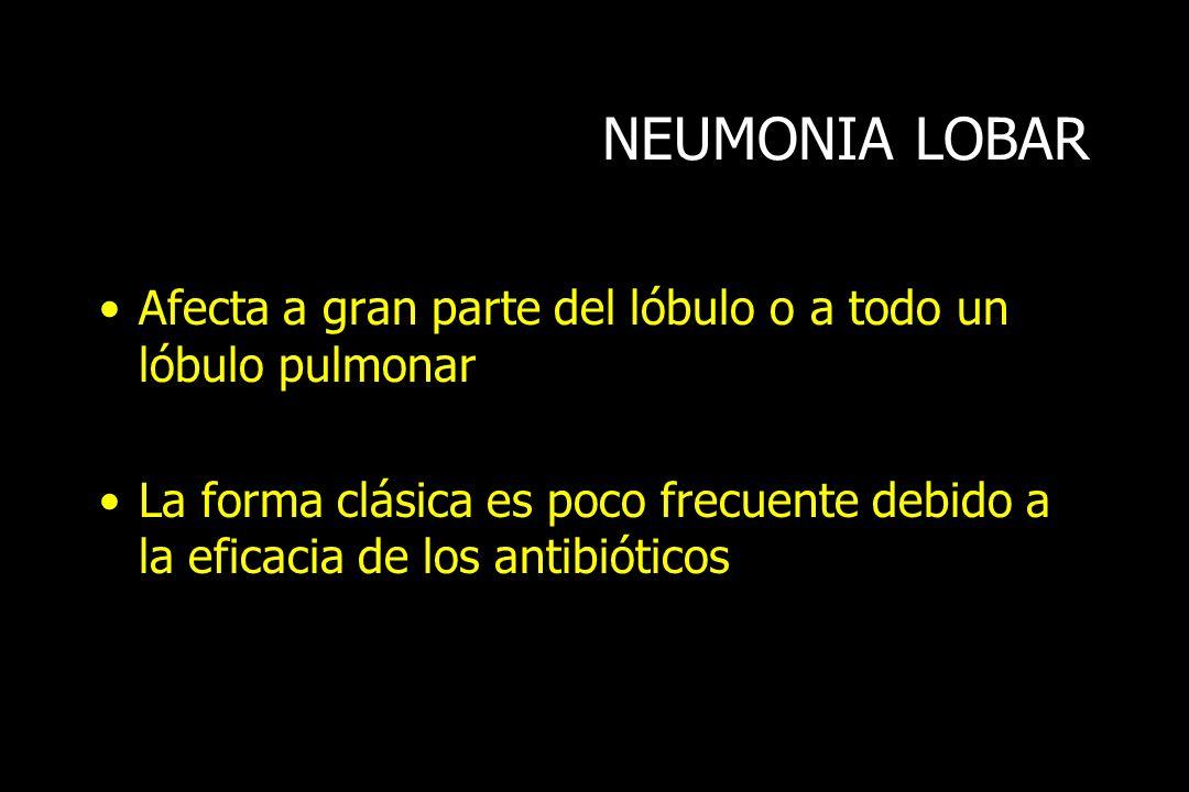 NEUMONIA LOBAR Afecta a gran parte del lóbulo o a todo un lóbulo pulmonar La forma clásica es poco frecuente debido a la eficacia de los antibióticos