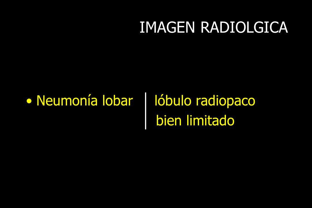 IMAGEN RADIOLGICA Neumonía lobar lóbulo radiopaco bien limitado
