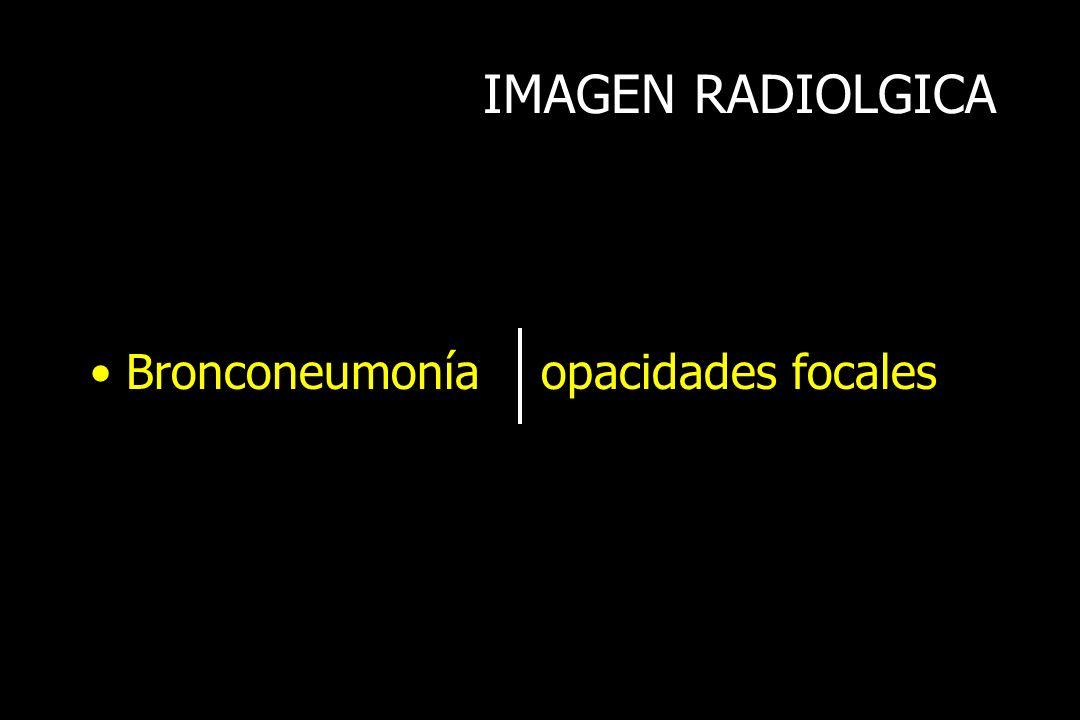 IMAGEN RADIOLGICA Bronconeumonía opacidades focales