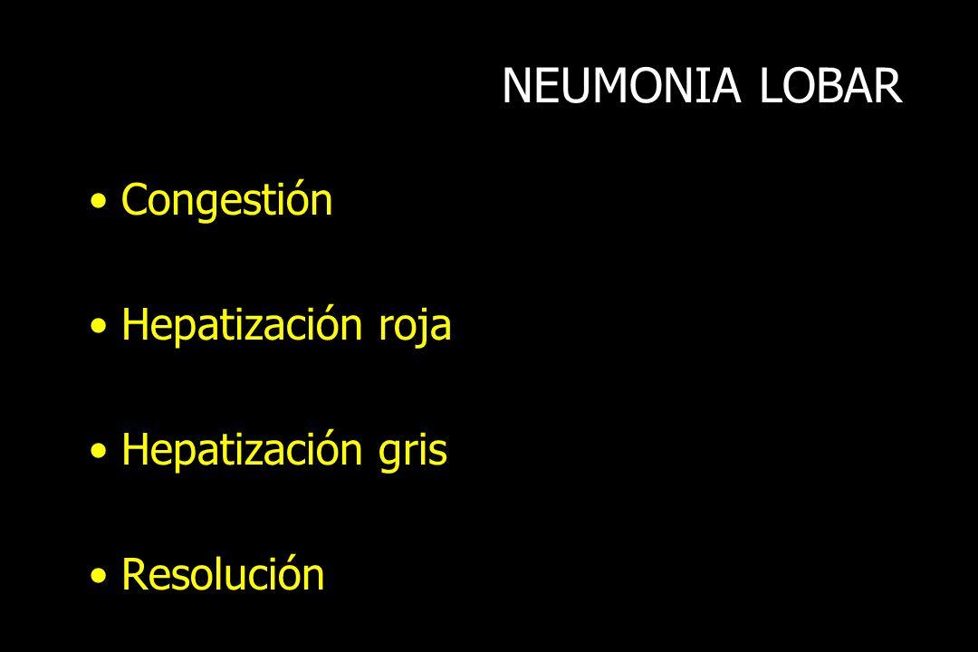 NEUMONIA LOBAR Congestión Hepatización roja Hepatización gris Resolución
