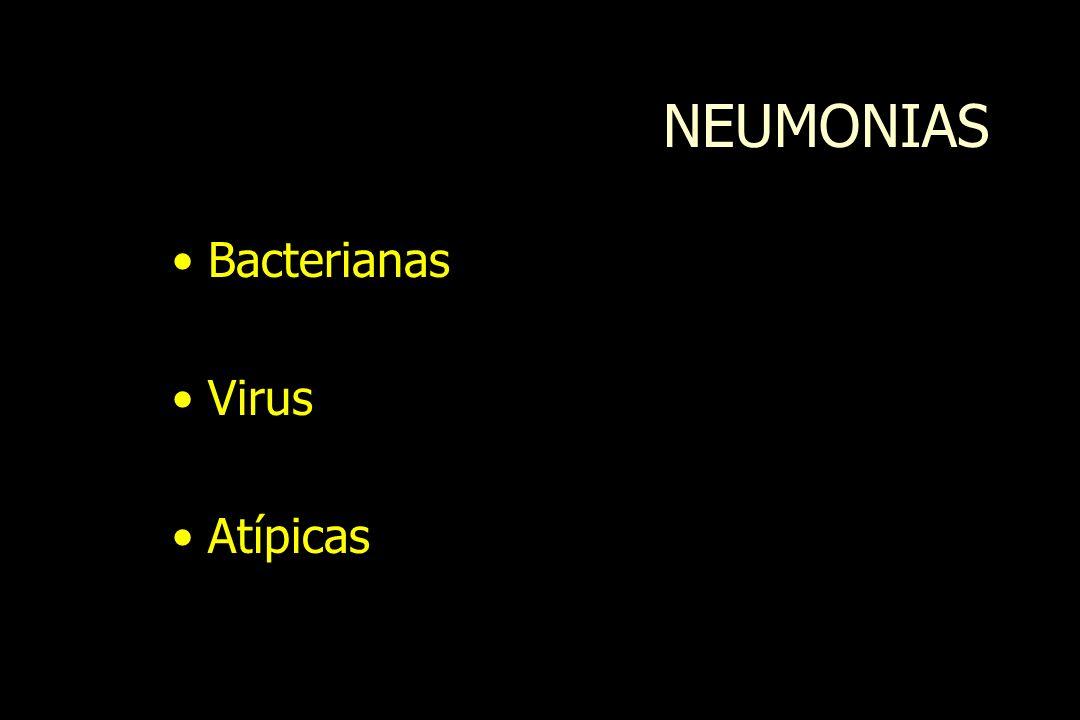 NEUMONIAS Bacterianas Virus Atípicas
