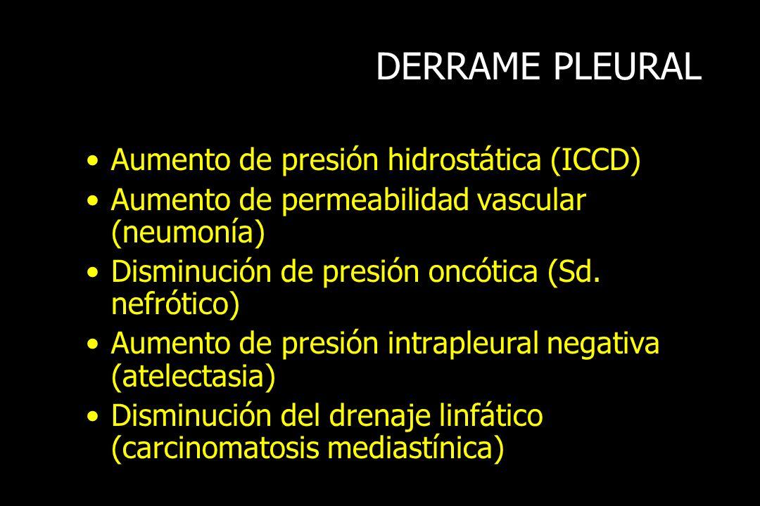 DERRAME PLEURAL Aumento de presión hidrostática (ICCD) Aumento de permeabilidad vascular (neumonía) Disminución de presión oncótica (Sd. nefrótico) Au