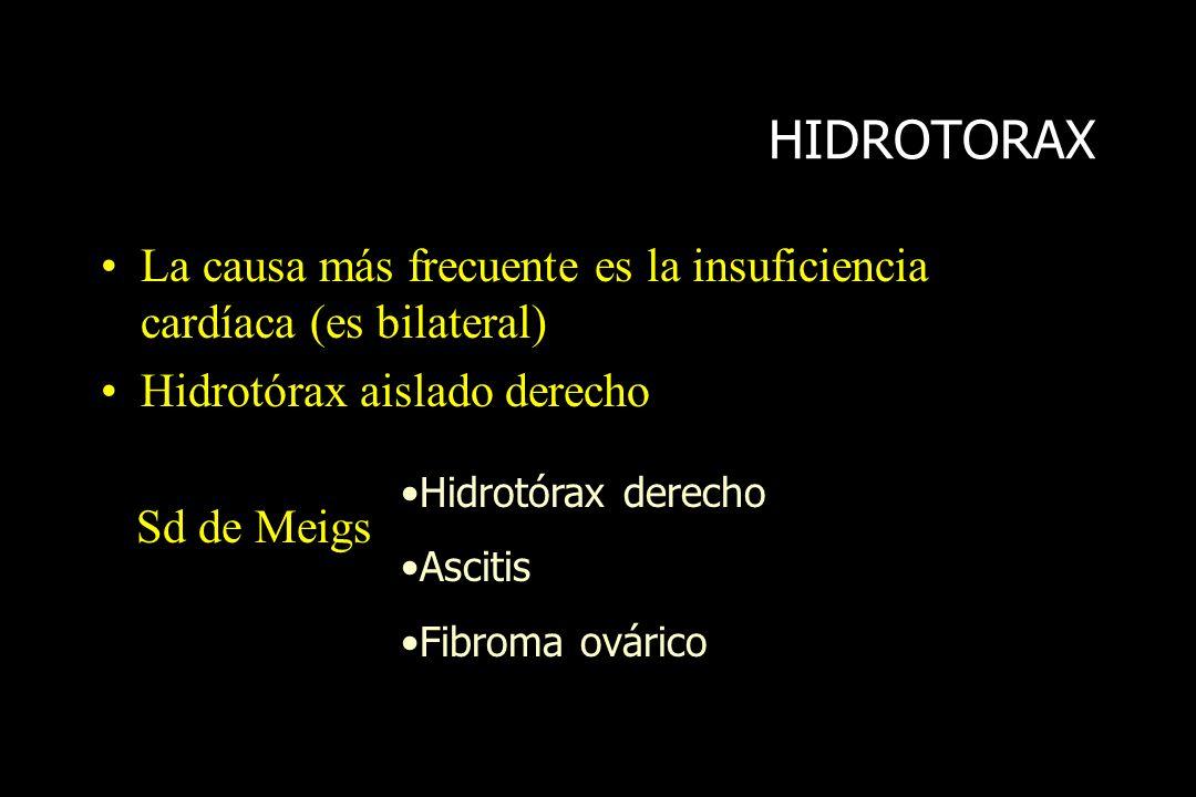 HIDROTORAX La causa más frecuente es la insuficiencia cardíaca (es bilateral) Hidrotórax aislado derecho Sd de Meigs Hidrotórax derecho Ascitis Fibrom