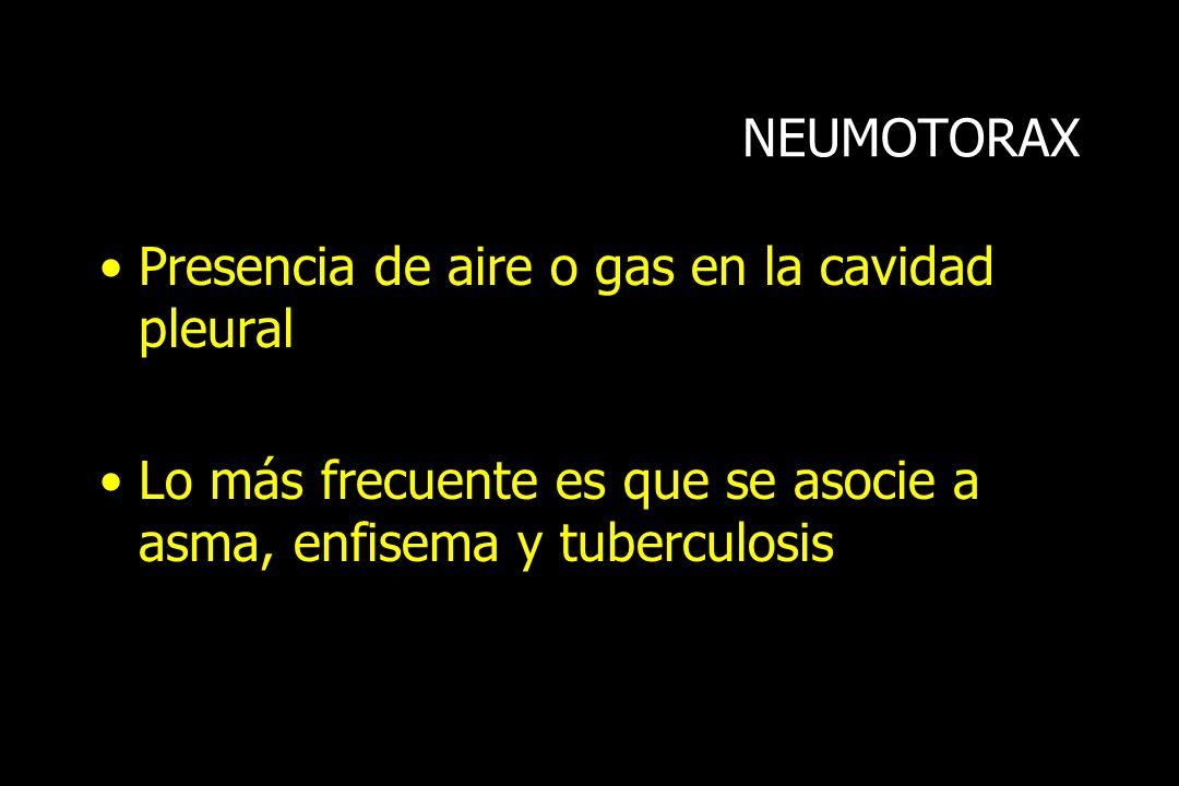 NEUMOTORAX Presencia de aire o gas en la cavidad pleural Lo más frecuente es que se asocie a asma, enfisema y tuberculosis