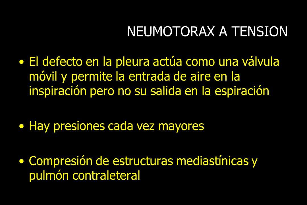 NEUMOTORAX A TENSION El defecto en la pleura actúa como una válvula móvil y permite la entrada de aire en la inspiración pero no su salida en la espir