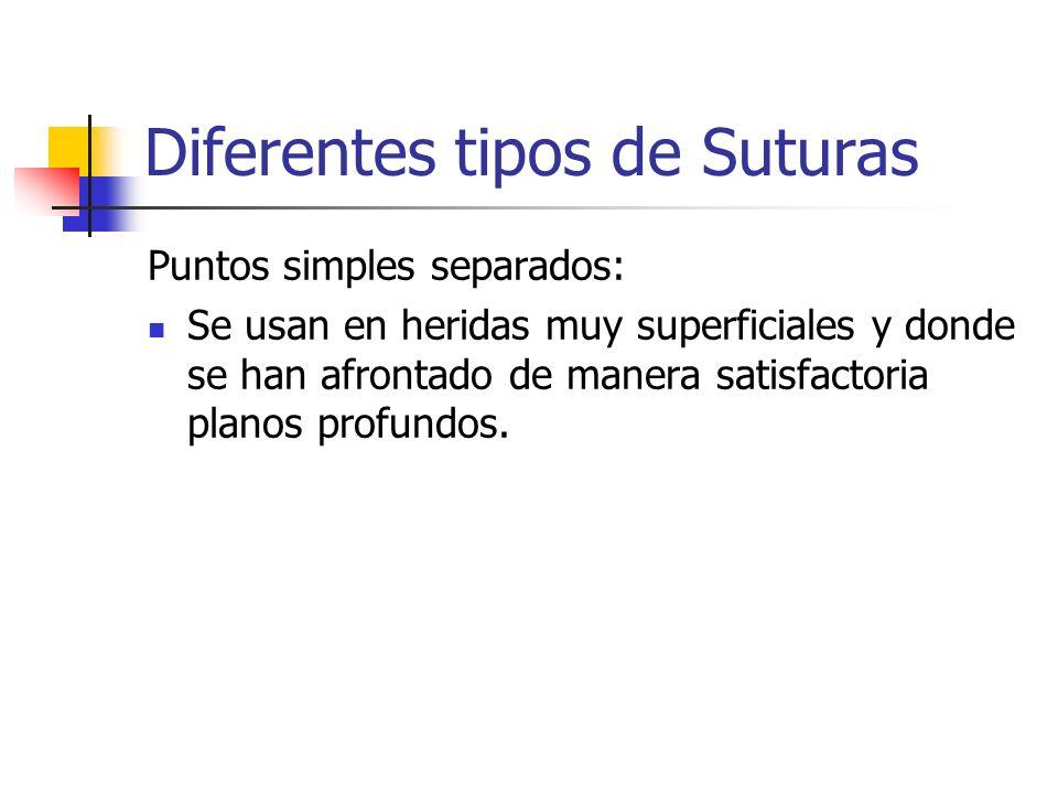 Diferentes tipos de Suturas Puntos simples separados: Se usan en heridas muy superficiales y donde se han afrontado de manera satisfactoria planos pro