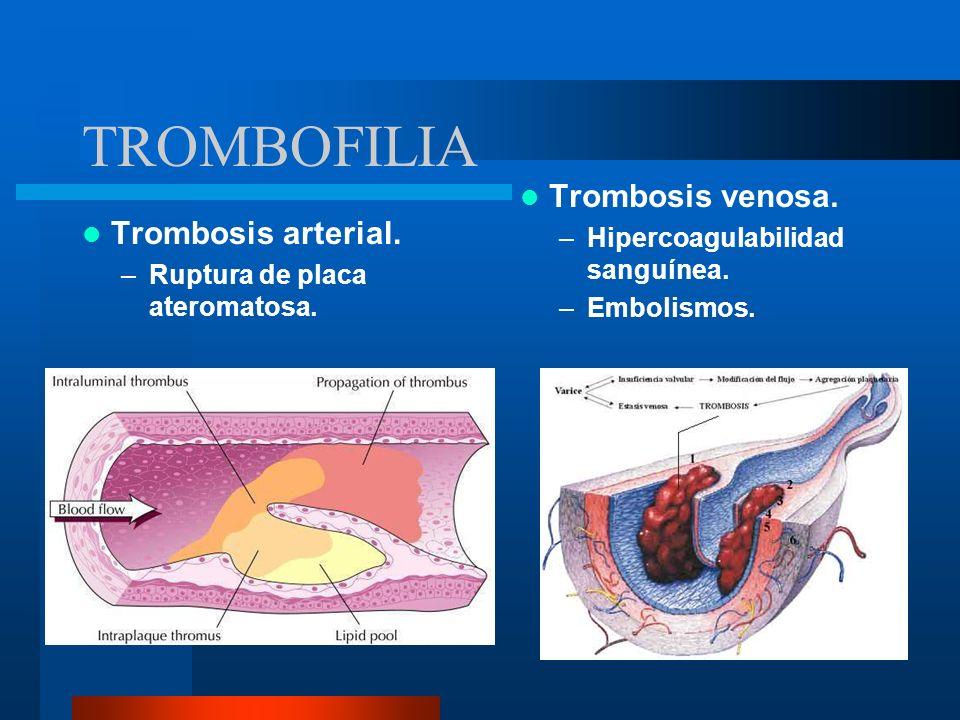 TROMBOFILIA Desequilibri o entre los mecanismos procoagulan tes y anticoagula ntes naturales.