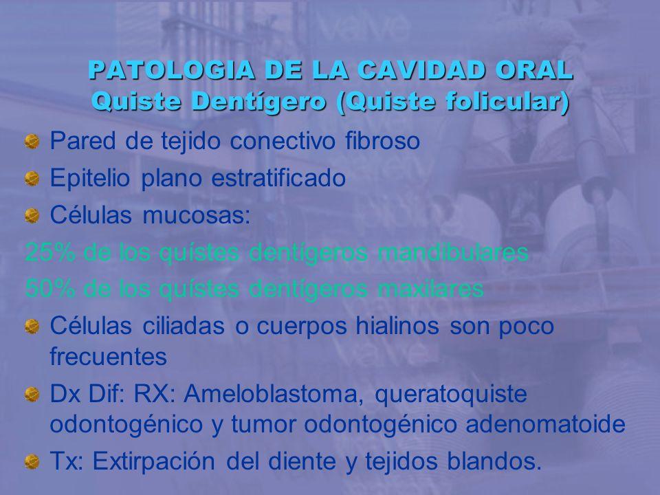 PATOLOGIA DE LA CAVIDAD ORAL Quiste Dentígero (Quiste folicular) Pared de tejido conectivo fibroso Epitelio plano estratificado Células mucosas: 25% d