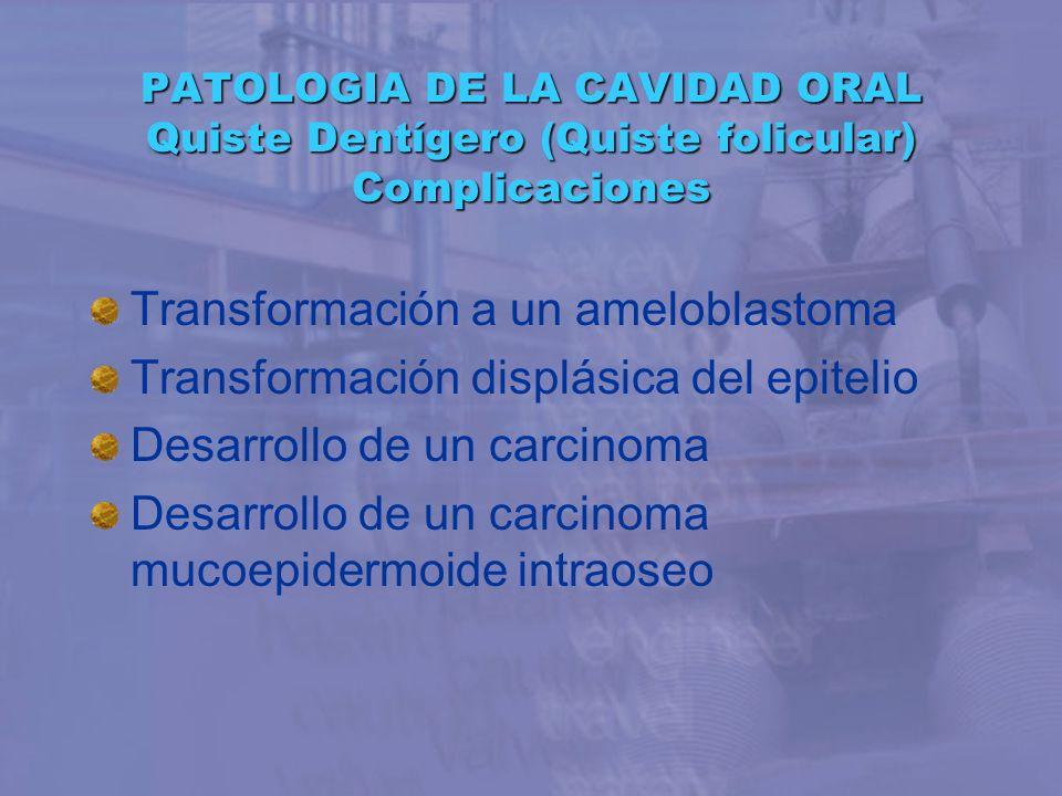 PATOLOGIA DE LA CAVIDAD ORAL Quiste Dentígero (Quiste folicular) Complicaciones Transformación a un ameloblastoma Transformación displásica del epitel