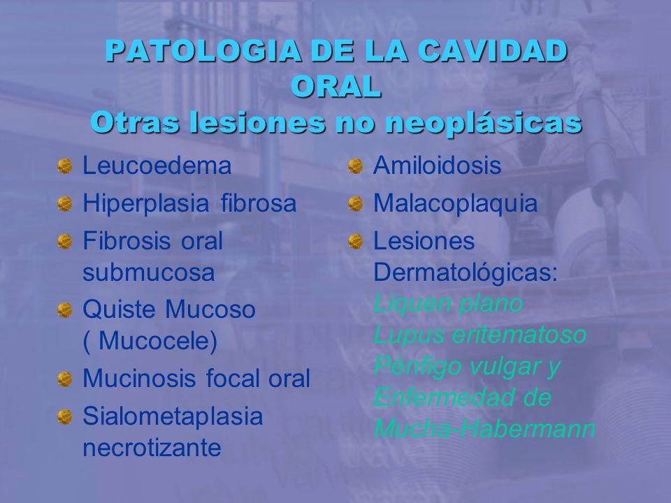 Leucoedema Hiperplasia fibrosa Fibrosis oral submucosa Quiste Mucoso ( Mucocele) Mucinosis focal oral Sialometaplasia necrotizante PATOLOGIA DE LA CAV