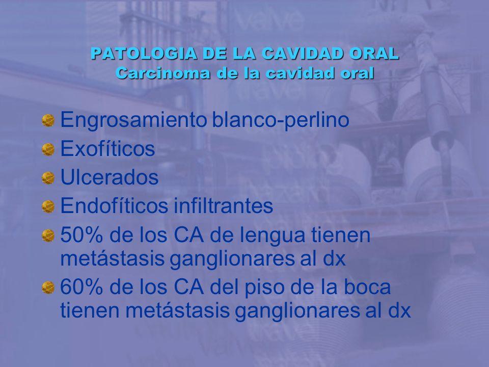 PATOLOGIA DE LA CAVIDAD ORAL Carcinoma de la cavidad oral Engrosamiento blanco-perlino Exofíticos Ulcerados Endofíticos infiltrantes 50% de los CA de